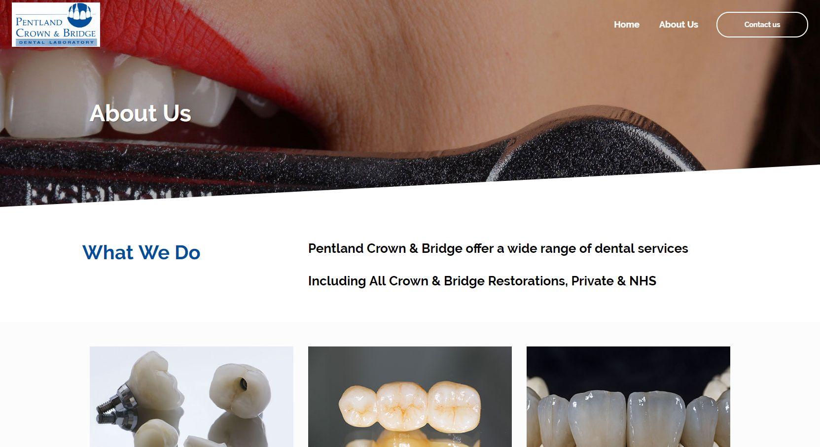 Pentland Crown & Bridge About